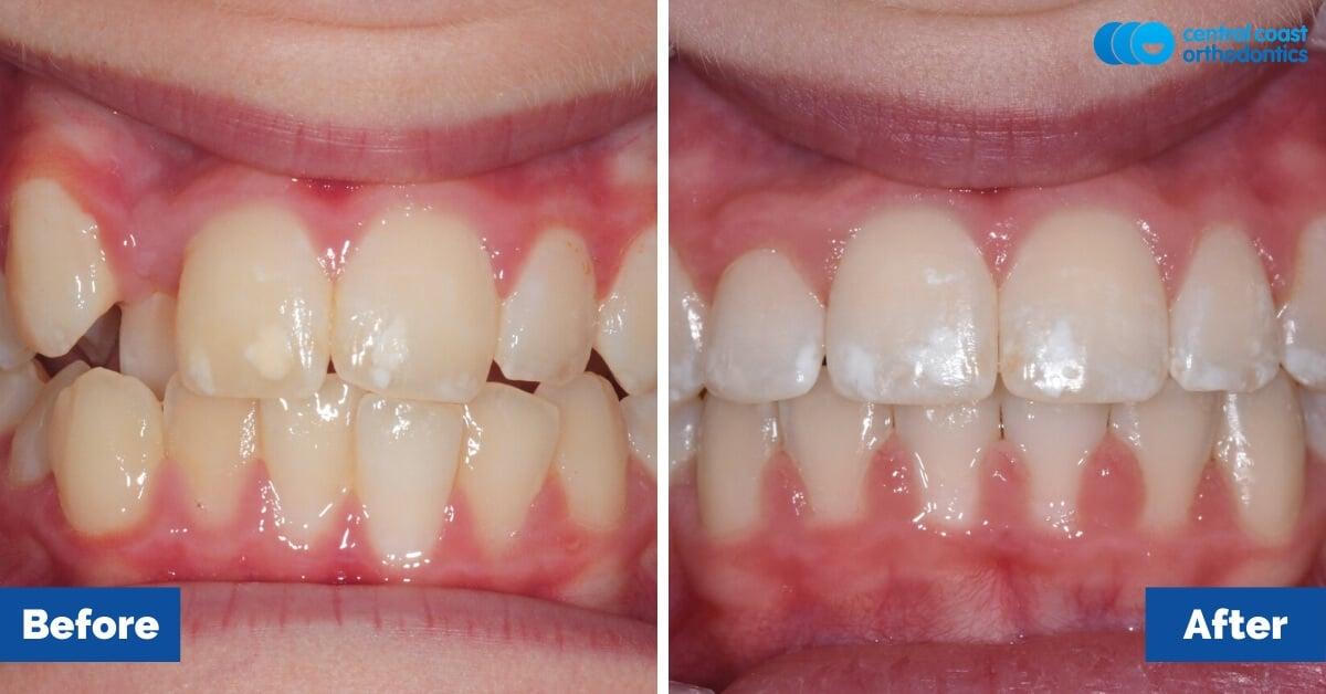 Orthodontic-Patient-Braces-Gosford-Central-Coast-Orthodontics2