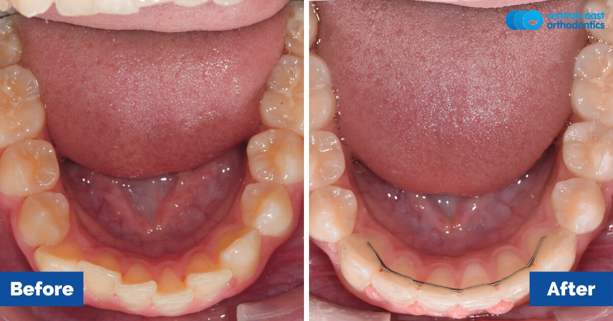 Orthodontic-Patient-Braces-Gosford-Central-Coast-Orthodontics3