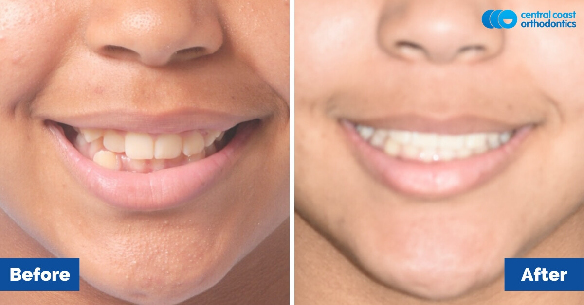Patient-2-Orthodontic-Patient-Braces-Gosford-Central-Coast-Orthodontics2