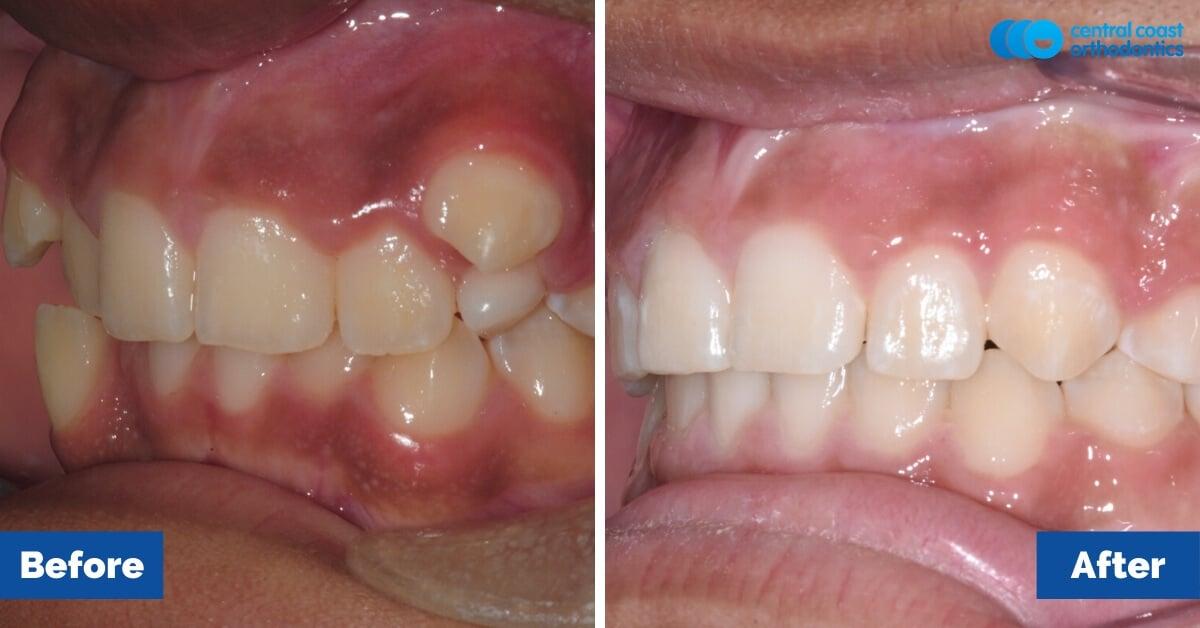 Patient-2-Orthodontic-Patient-Braces-Gosford-Central-Coast-Orthodontics3