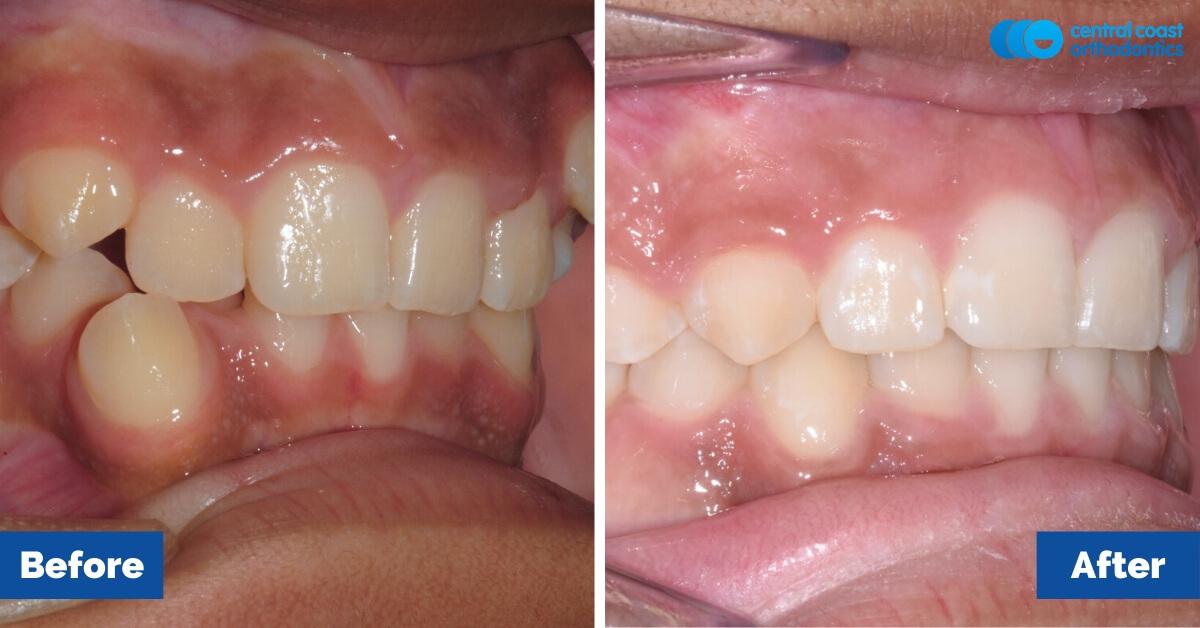 Patient-2-Orthodontic-Patient-Braces-Gosford-Central-Coast-Orthodontics4