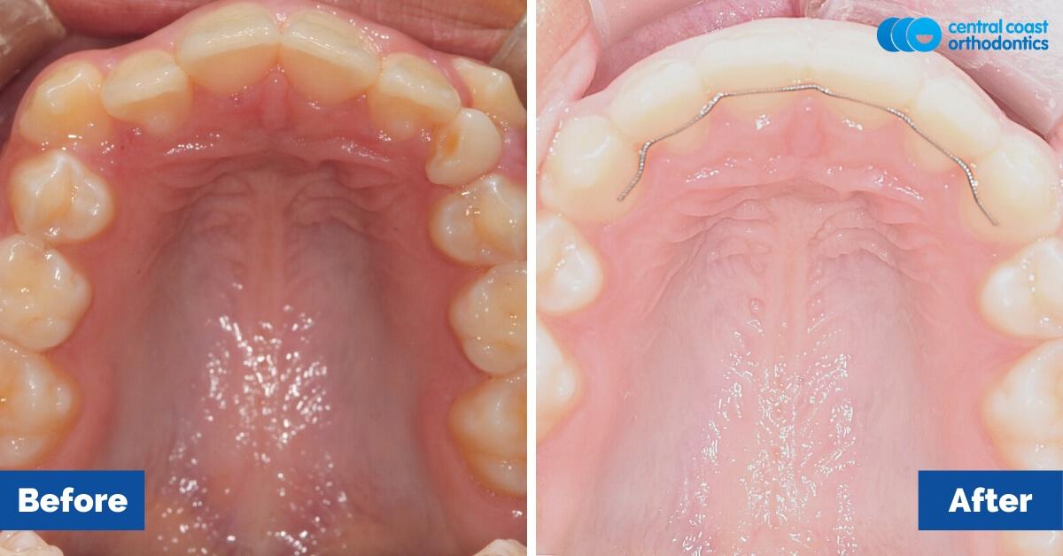 Patient-2-Orthodontic-Patient-Braces-Gosford-Central-Coast-Orthodontics5