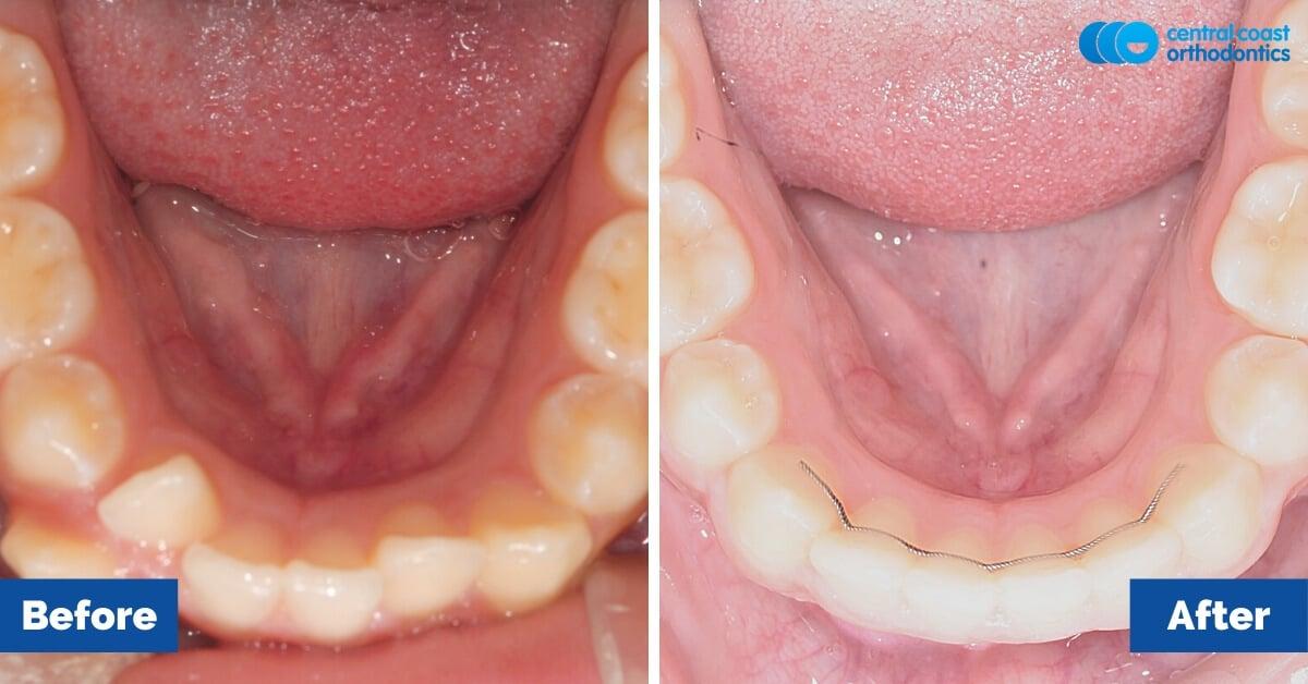Patient-2-Orthodontic-Patient-Braces-Gosford-Central-Coast-Orthodontics6