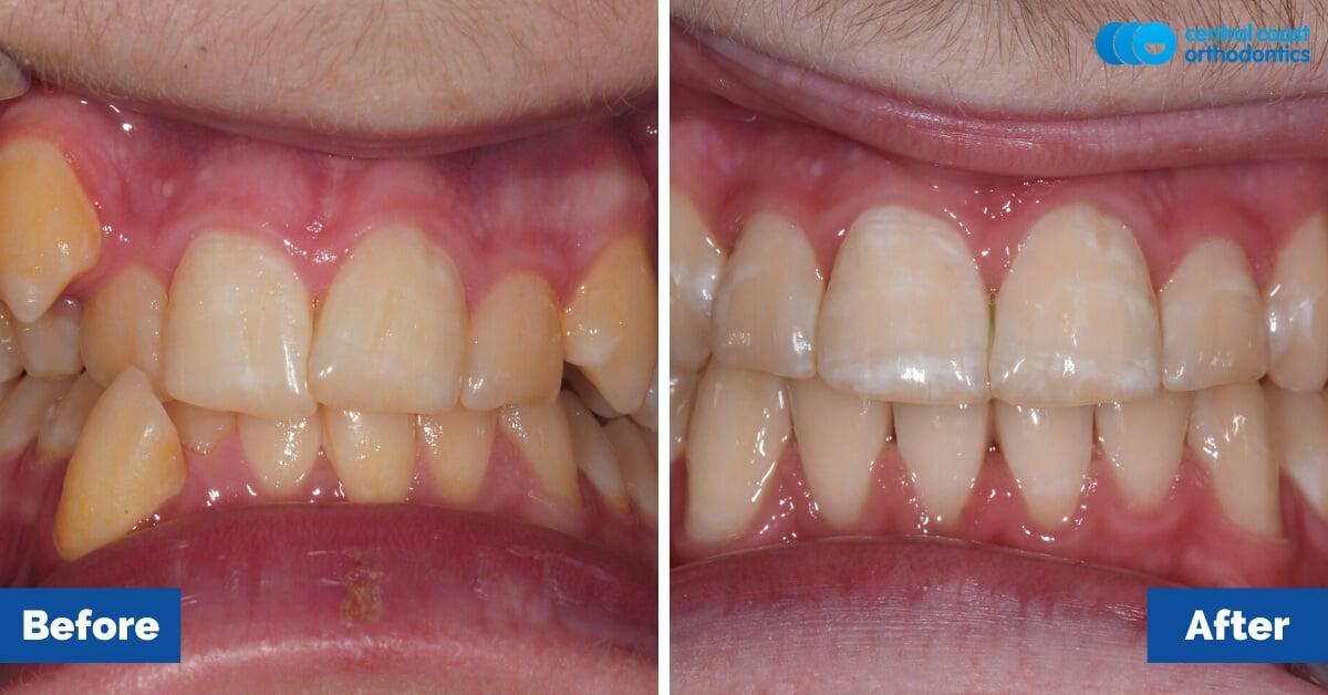 Patient-3-Braces-Gosford-Cental-Coast-Orthodontics1