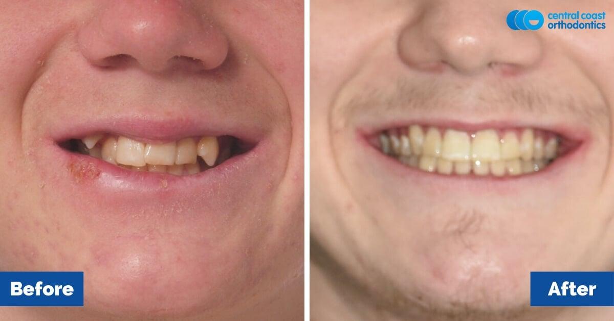 Patient-3-Braces-Gosford-Cental-Coast-Orthodontics2