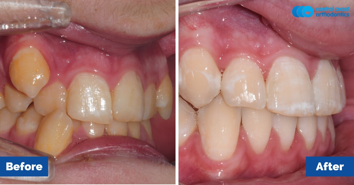 Patient-3-Braces-Gosford-Cental-Coast-Orthodontics4