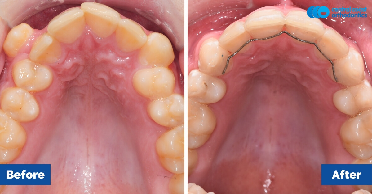Patient-3-Braces-Gosford-Cental-Coast-Orthodontics5