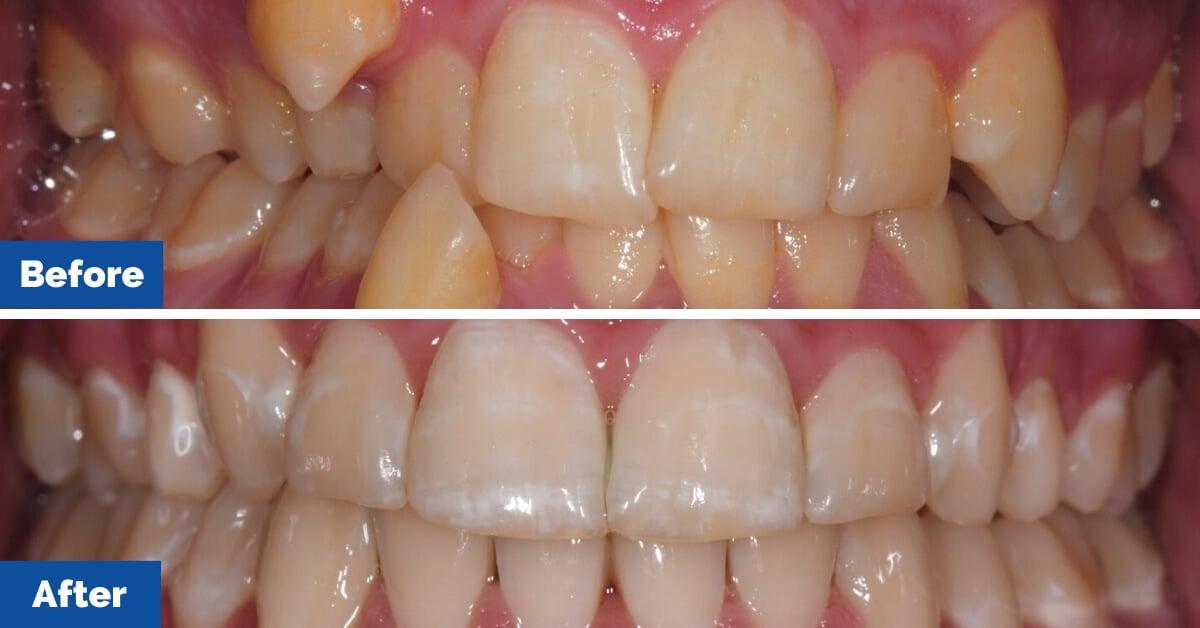 Patient-3-Braces-Gosford-Cental-Coast-Orthodontics7