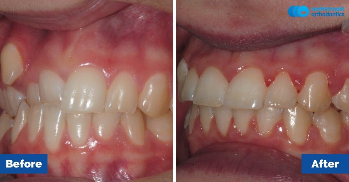 Patient-4-Braces-Gosford-Central-Coast-Orthodontics2
