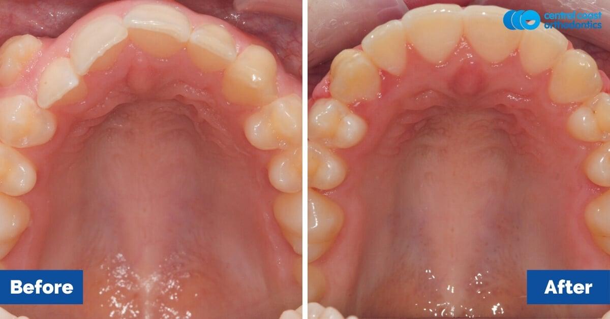 Patient-4-Braces-Gosford-Central-Coast-Orthodontics5