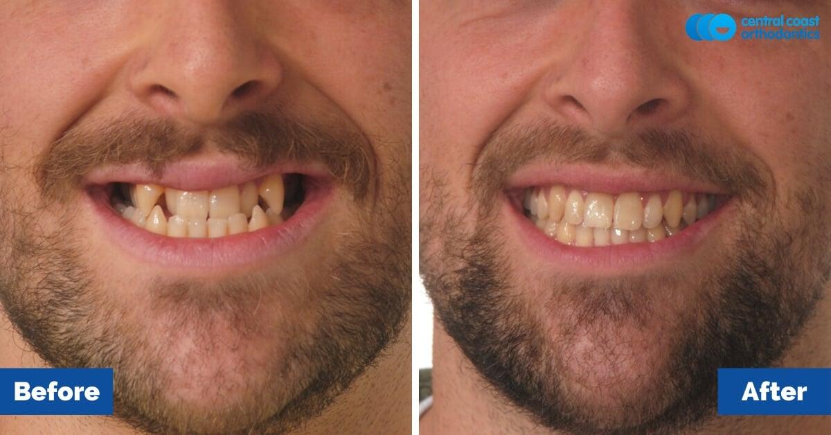 Patient-5-Central-Coast-Orthodontics1