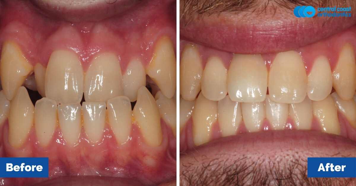 Patient-5-Central-Coast-Orthodontics2
