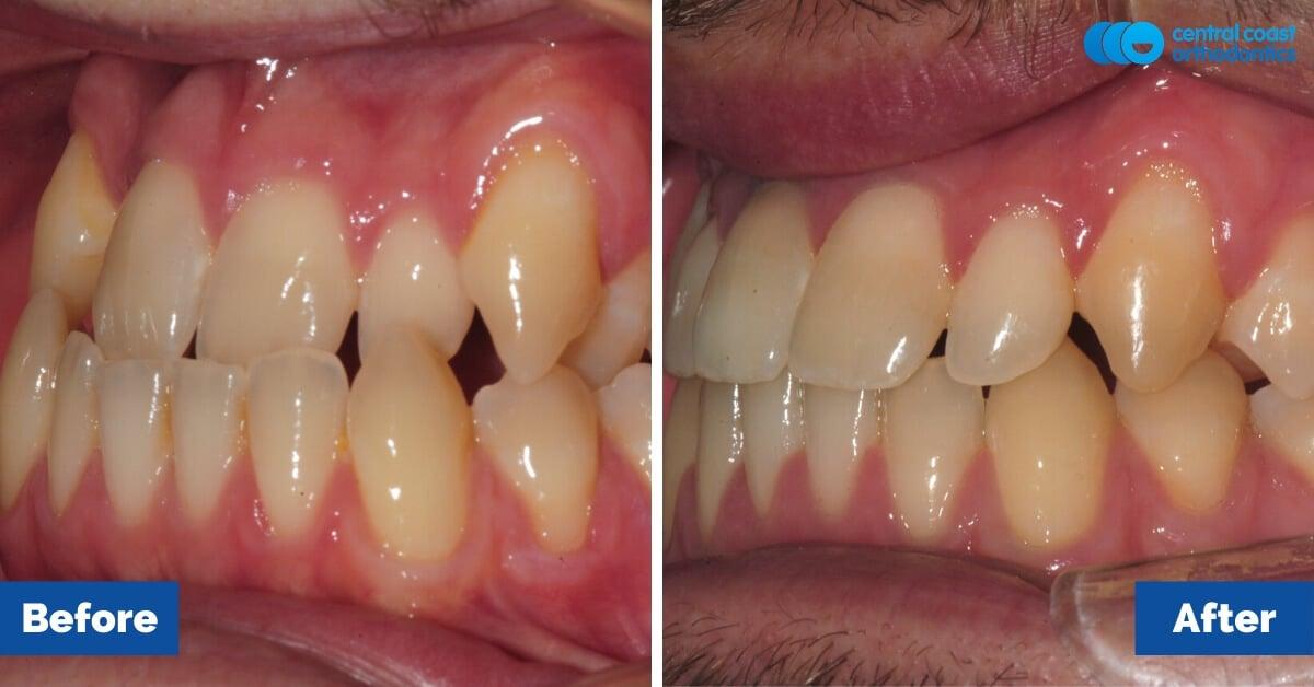 Patient-5-Central-Coast-Orthodontics3