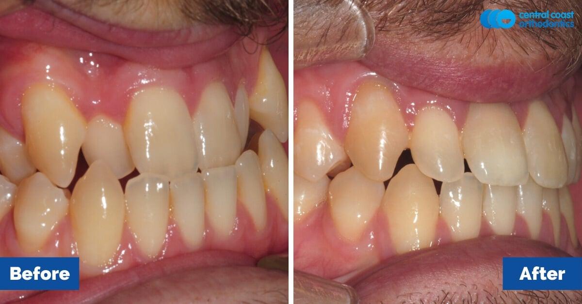 Patient-5-Central-Coast-Orthodontics4