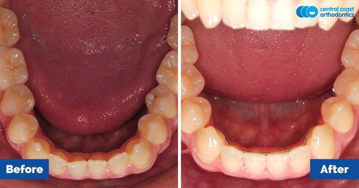 Patient-5-Central-Coast-Orthodontics6