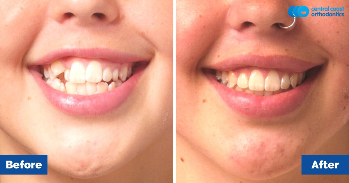 Orthodontic-Patient-Gosford-Central-Coast-Orthodontics1