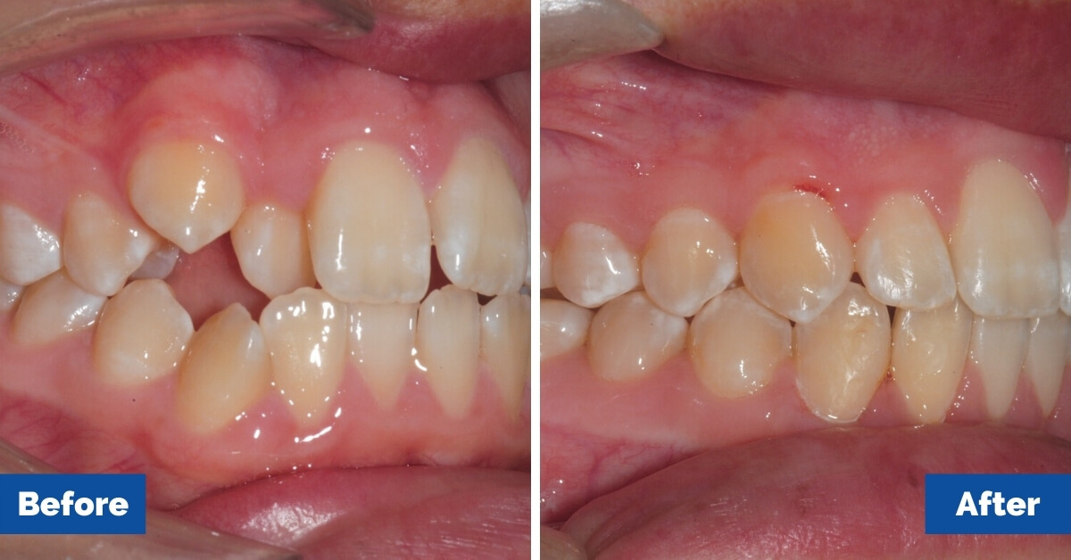 Patient-2-Central-Coast-Orthodontics1