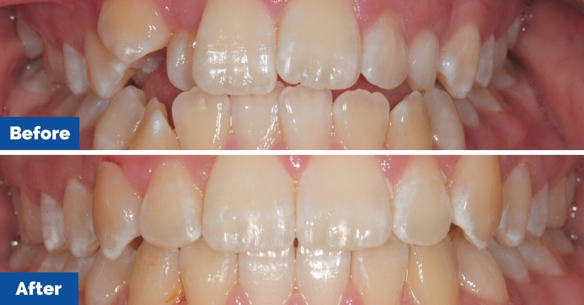 Patient-2-Central-Coast-Orthodontics4