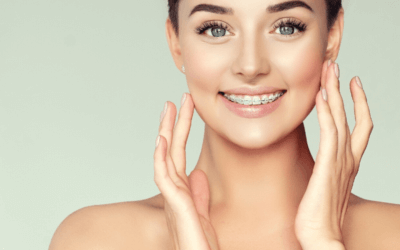 Braces vs Aligners – Which Will Suit You Better?