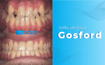Braces and Jaw Surgery Gosford