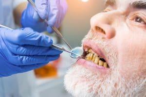 Teeth and Drug Use