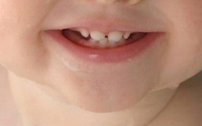 Teeth Development in Children