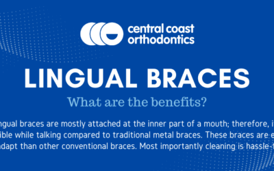 Lingual Braces – What Are the Benefits?