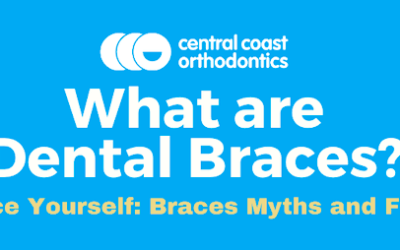Braces Myths and Facts
