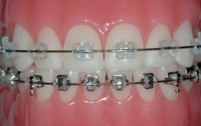How Are Metal and Ceramic Braces Different?