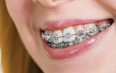 What Is the Cost of Metal Braces?