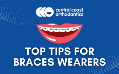 Top Tips For Braces Wearers