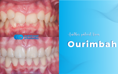 Braces in Ourimbah