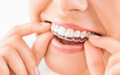 Clear Aligners: How Much do they Cost in Australia?