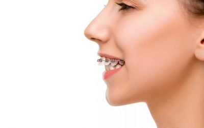 What's the Difference Between an Overbite and an Overjet?