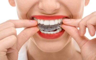 Getting Your Braces Removed – What to Expect